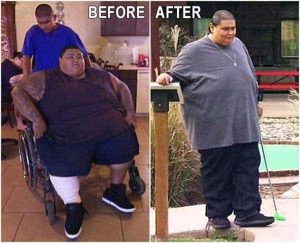 Dr. Nowzaradan patient Michael Dominguez weight loss diet plan